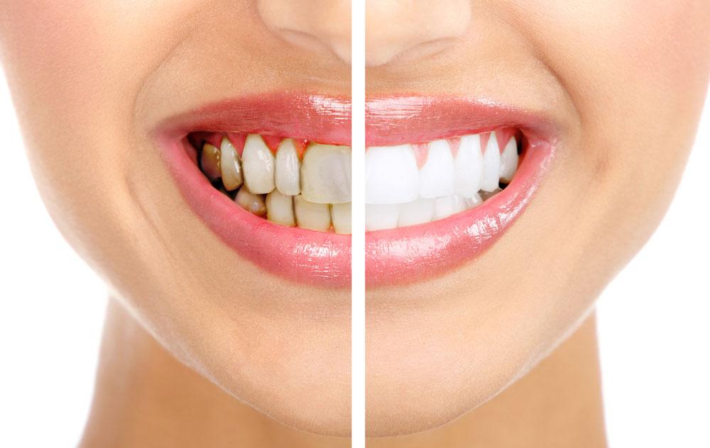Чим небезпечний зубний камінь?