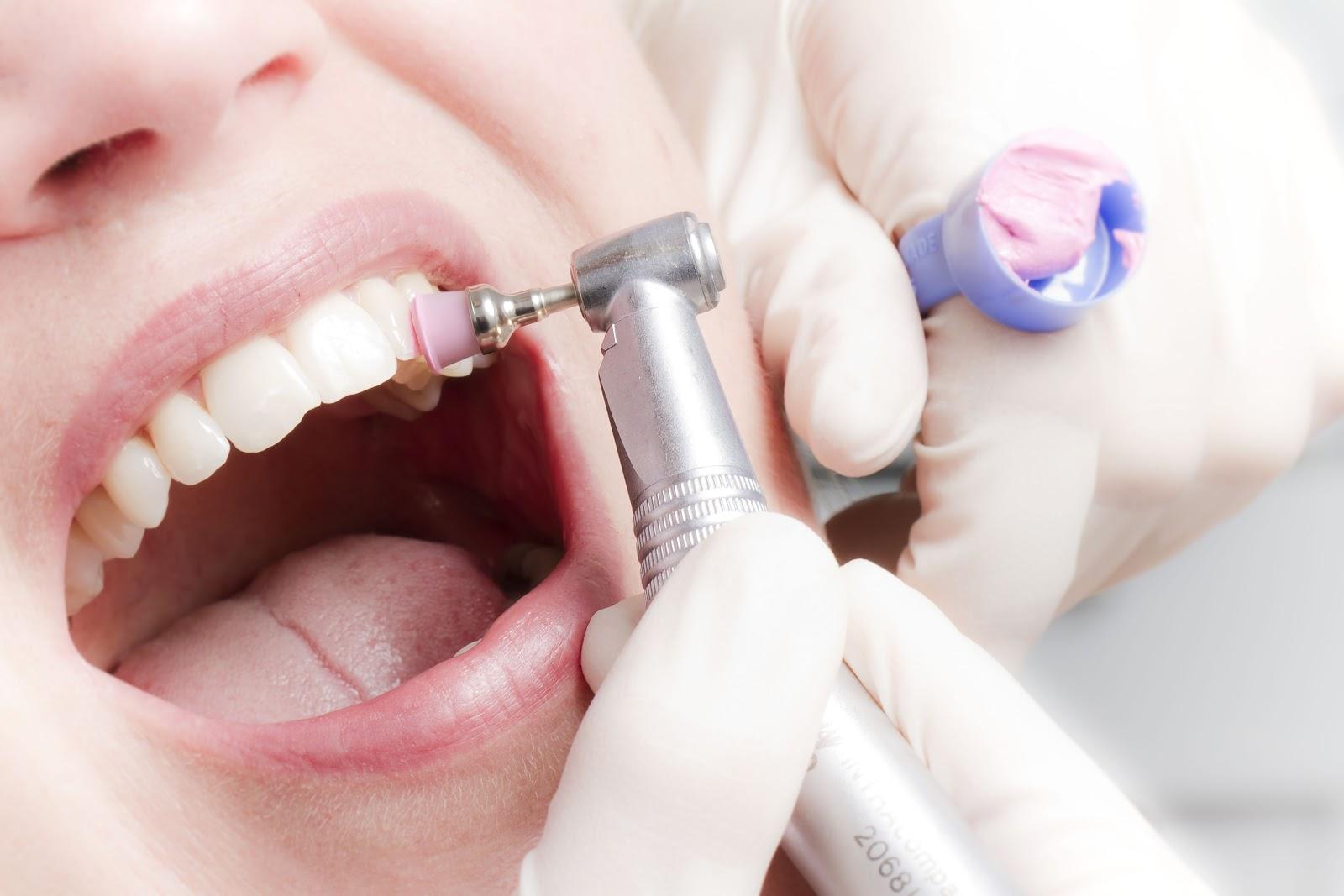 Професійне чищення зубів: розкіш або необхідність