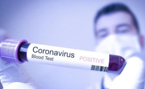 Українці зможуть самі перевіряти себе на коронавірус – скільки будуть коштувати тест-системи в аптеках